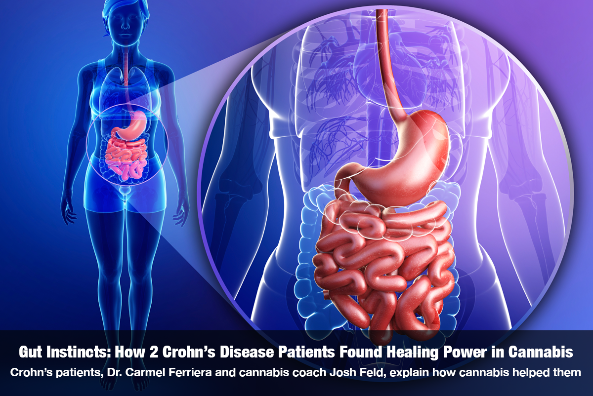 Gut Instincts: How 2 Crohn's Disease Patients Found Healing Power in Cannabis Crohn's patients, Dr. Carmel Ferriera and cannabis coach Josh Feld, explain how cannabis helped them The Cannabis Reporter Radio Show Hosted by Snowden Bishop